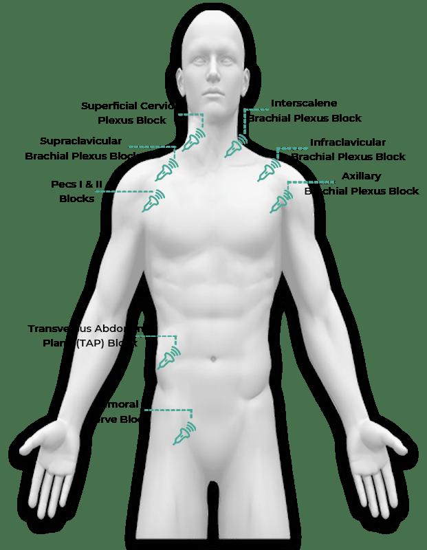 nerve block regions